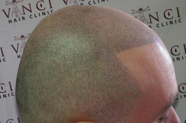 Going bald in Glasgow? Get a hair tattoo
