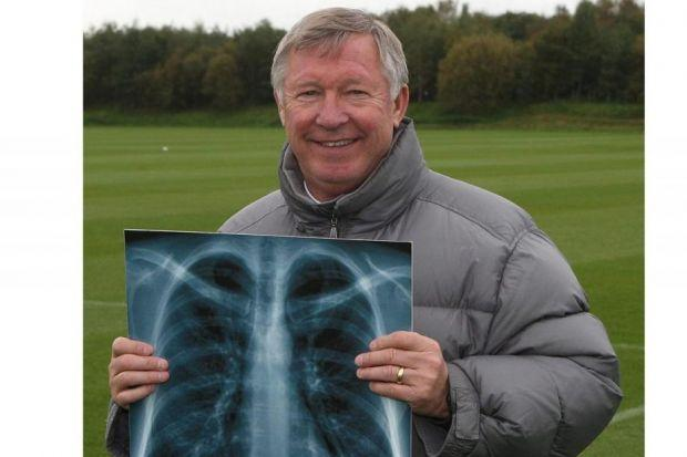 Sir Alex Ferguson promoted the message about getting checked for lung cancer