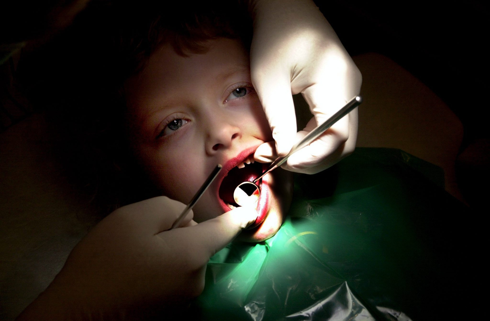 The figures show that almost a quarter of young Scots children having teeth taken out were in the NHS Greater Glasgow and Clyde area.