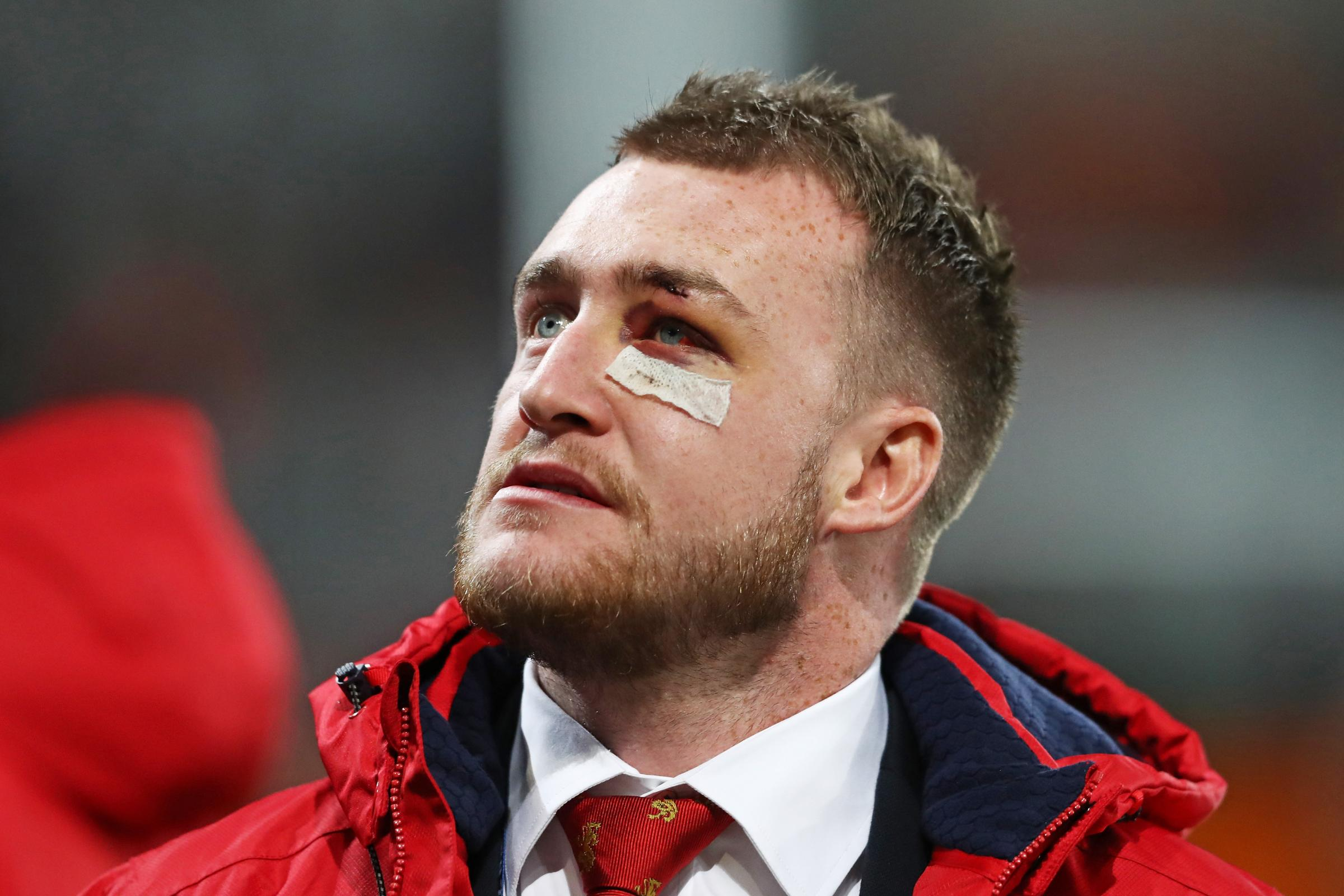 The injured Stuart Hogg watches the Lions defeat against the Highlanders but he will soon be back home