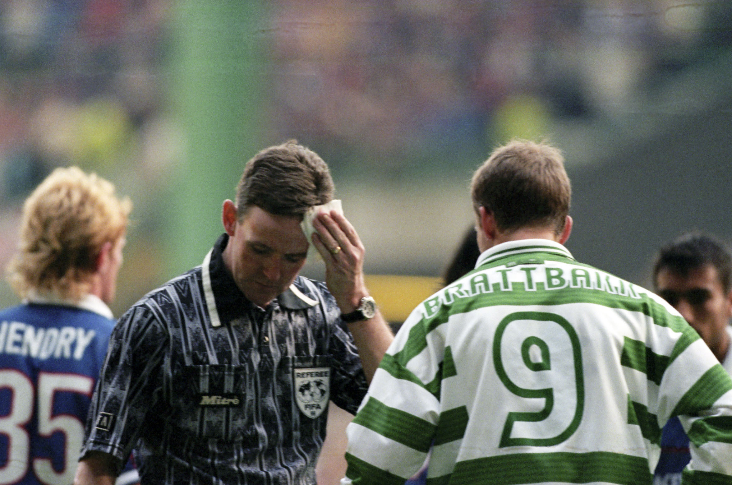 Hugh Dallas wipes blood from his forehead after being struck by a coin in the infamous 1999 shame game