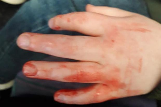 Bus stop vandals: Glasgow toddler's hand slashed by broken glass