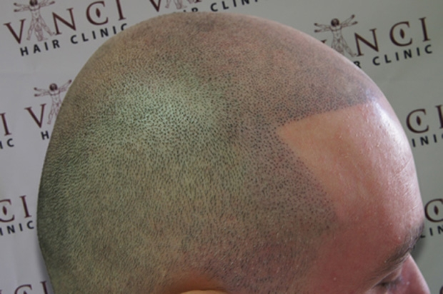 Hair toppers for women pull thru wiglets for Hairline tattoo cost