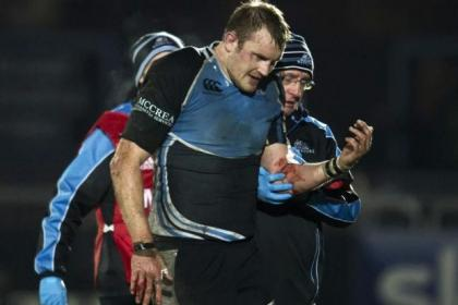Glasgow will miss the presence of skipper Al Kellock, forced to sit out the Castres match