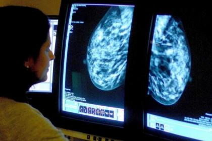 A call has been made for more cancer screening